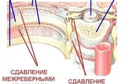 Сдавливание межреберных нервов - причина болей в спине