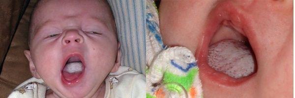 Молочница на языке у новорожденного ребенка
