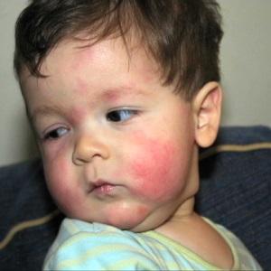 Проявление аллергии на курицу у детей ( высыпание на лице)