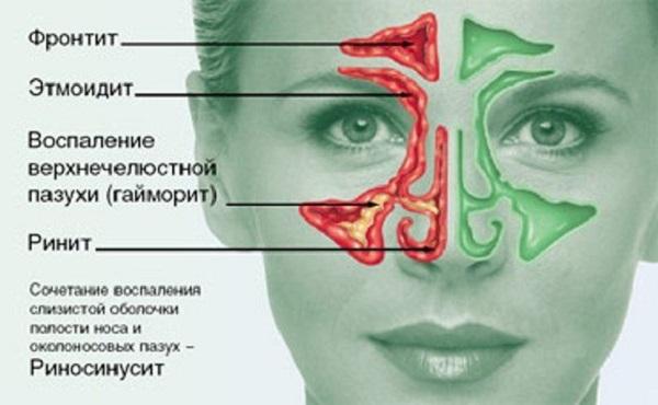 Воспалительные процессы