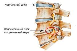Схема хондроза грудного отдела