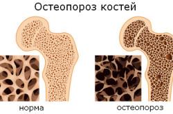 Остеопороз - причина ночных болей в спине