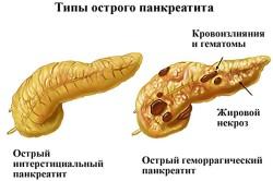 Панкреатит - причина болей под ребрами
