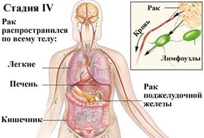 Рак четвертой стадии