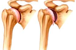 Схема остеохондроза плечевого сустава