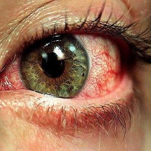Покраснение глаз, зуд, слезоточение
