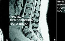 Магнитно-резонансная томография пояснично-крестцового отдела позвоночника: А - норма; Б - грыжа межпозвонкового диска; В - остеохондроз позвоночника.