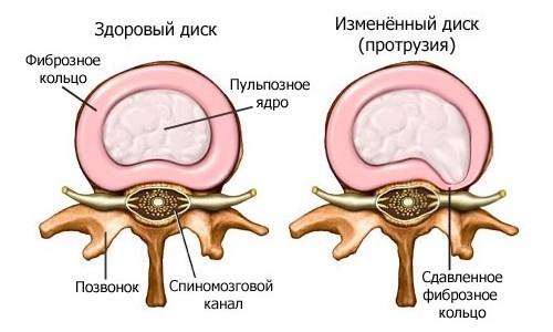 Схема протрузии
