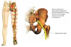 Пояснично–крестцовый радикулит как причина симптома Нери