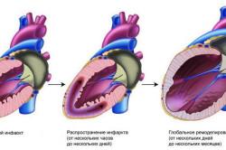 Инфаркт - причина болей под ребрами