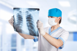 Рентгенотерапия спины для обнаружения миозита