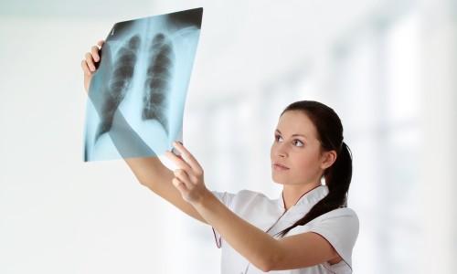 Наблюдение врача при кифосколиозе