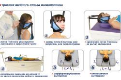Метод вытягивания шейного отдела позвоночника