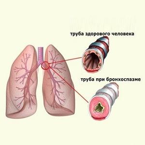 Симптомы бронхоспазма