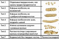 Типы консистенции кала