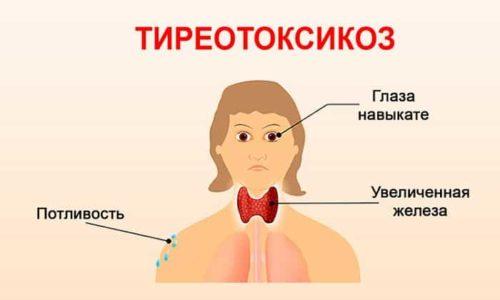 Тиреотоксикоз (гипертиреоз) - это синдром, при котором в организме больного наблюдается слишком высокая концентрация тиреоидных гормонов