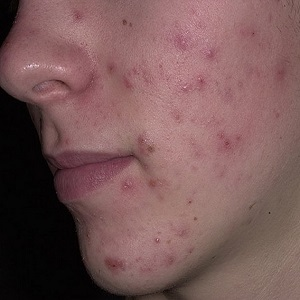 Аллергические прыщи у взрослого