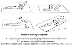 Упражнения, рекомендуемые при кифозе