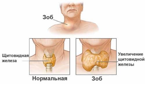 Увеличение щитовидной железы необязательно является заболеванием, может провоцироваться анатомическими особенностями организма
