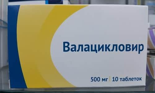 Назначают Валацикловир при возникновении первых симптомов герпеса: зуда, небольшого покраснения