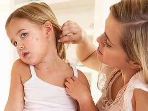 инфекционная болезнь оспа