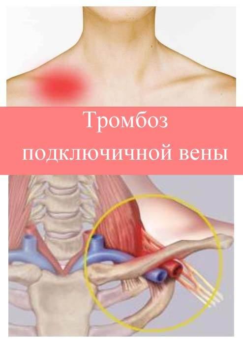 Тромбоз подключичной вены