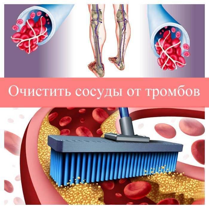 чистка сосудов от тромбов