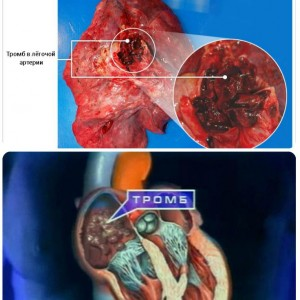 Почему образуется тромб в сосудах