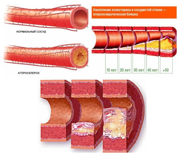 Тромб в ноге лечение
