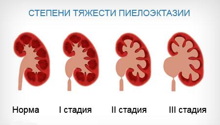степени пиелоэктазии