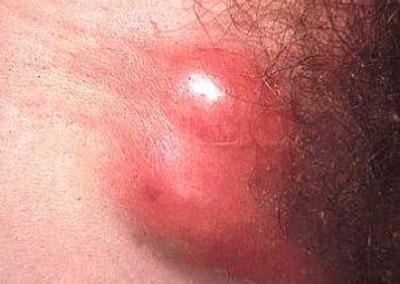 Проявление лимфогранулемы