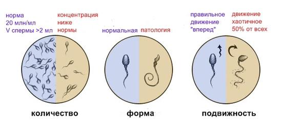 количество, форма и подыижность сперматозоидов
