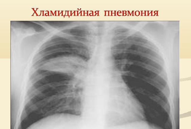 Рентгенограмма хламидийной атипичной пневмонии