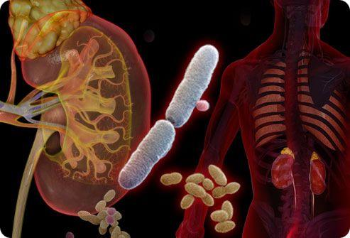 инфекция в почках