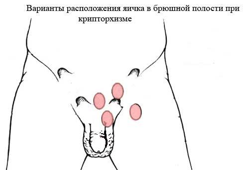 расположение яичек при крипторхизме