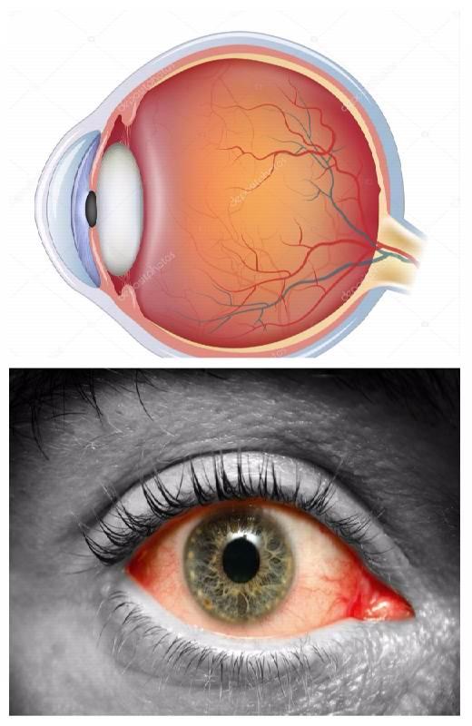 Атеросклероз сетчатки глаза
