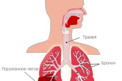 Поражение легкого при пневмонии
