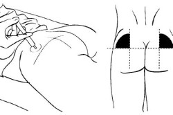 Введение внутримышечных уколов