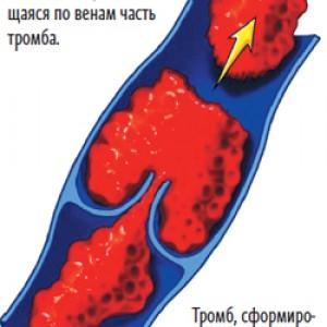 Тромбы