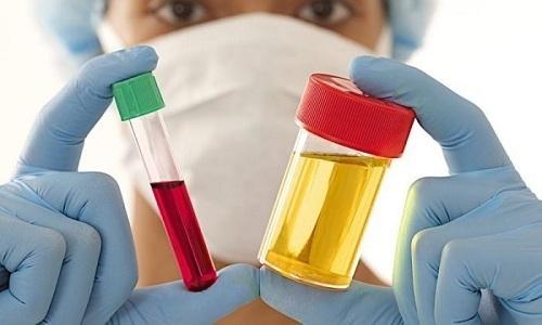 Для выявления геморрагического цистита используют общие анализы крови и мочи