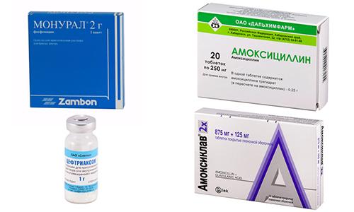 Антибиотики назначаются только при бактериальном поражении (Амоксициллин, Амоксиклав, Монурал, Цефтриаксон)