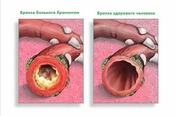 Структура бронхов здорового и больного человека