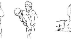 Помощь при обструкции дыхательных путей из-за попадания инородного предмета