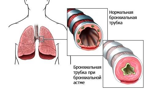 Бронхиальные трубки в норме и при астме