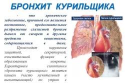 Понятие бронхита при курении