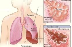 Схема болезни пневмонии