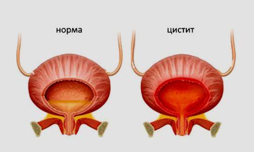 Цистит может пройти самостоятельно только в том случае, когда наблюдается неинфекционная природа заболевания