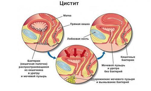 Хроническим циститом называется длительно протекающее воспалительное заболевание преимущественно бактериальной природы