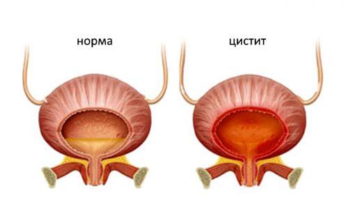 Воспаление слизистых тканей мочевого пузыря у женщины, или цистит, - распространенное явление во время беременности