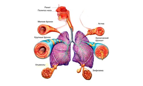 Дыхательные пути в норме и патологии